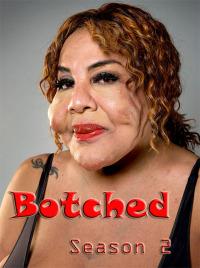 Botched Season 2